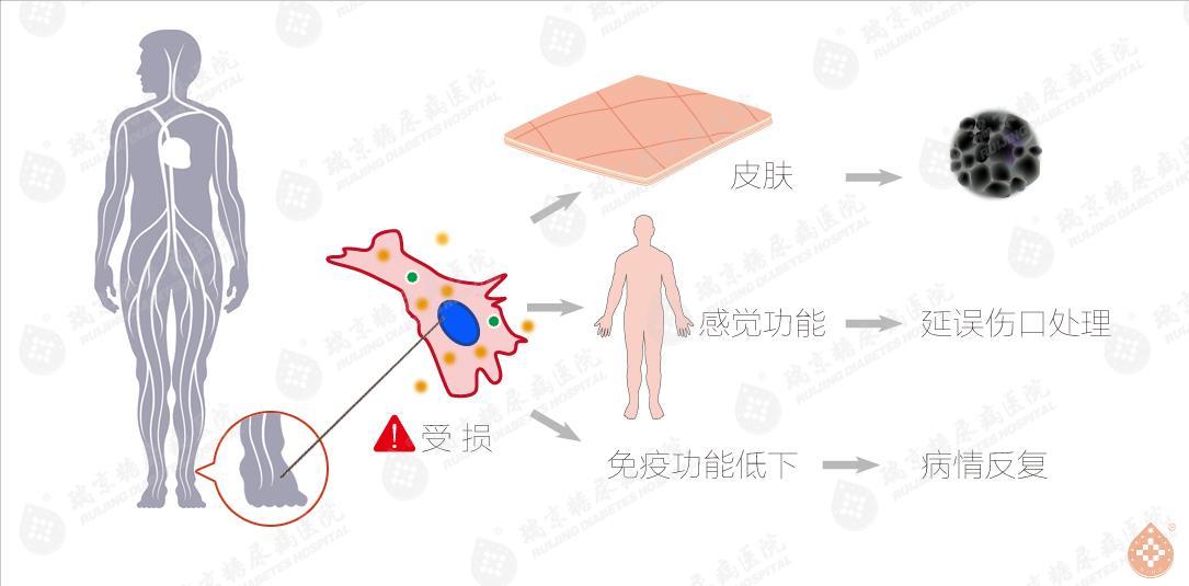 糖尿病足皮肤受损