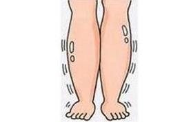 糖尿病患者小腿肿