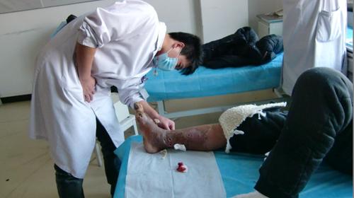 糖尿病医生看脚